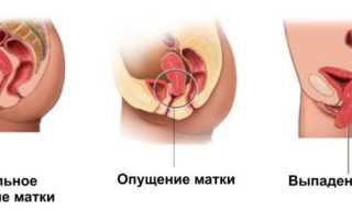 Лечение тренажерами Кегеля опущения органов малого таза