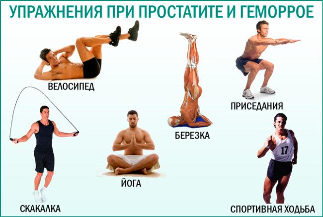 Физические упражнения для профилактики простатита у мужчин причина заболевание хронически простатита