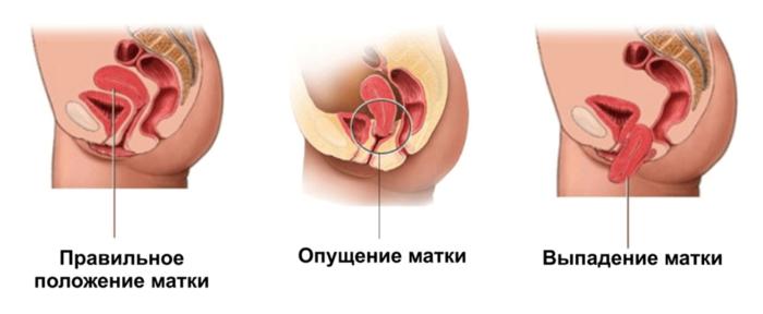 Особенности строения женских органов после родов