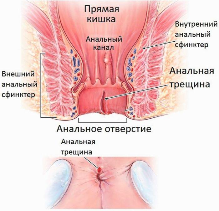 сфинктера прямой кишки