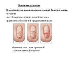 Фимоз полового члена: что это такое, симптомы, лечение