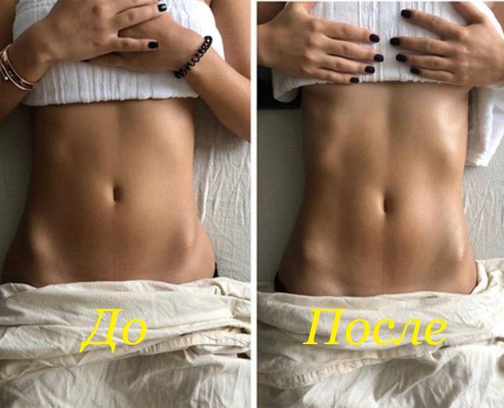 лимфодренажный массаж до и после